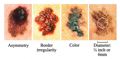 Skin Cancer Visual Chart - What to Look for