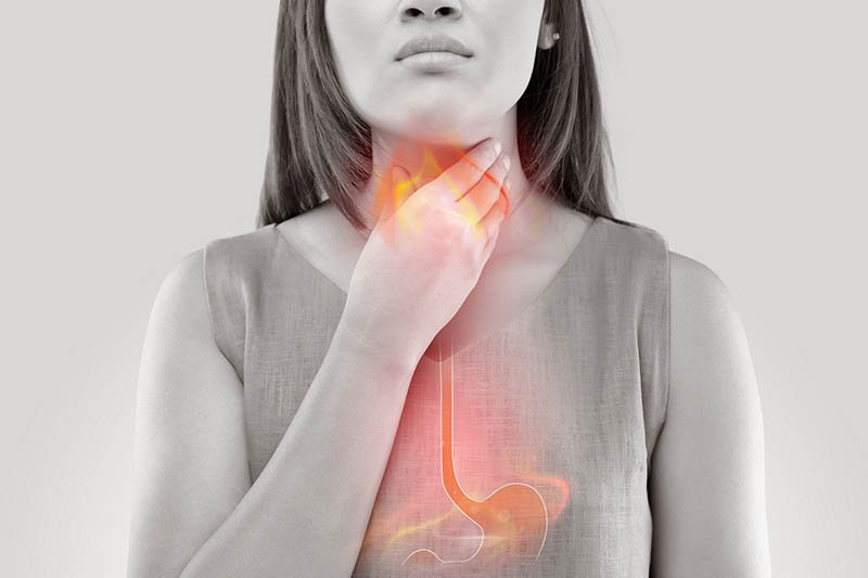 Don't Let Acid Reflux Lead to Cancer