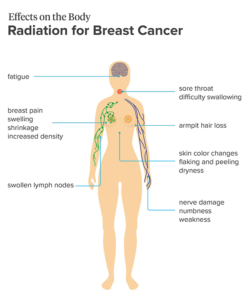 side effects radiation breast cancer
