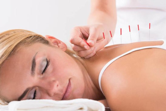 acupuncture and chemotherapy