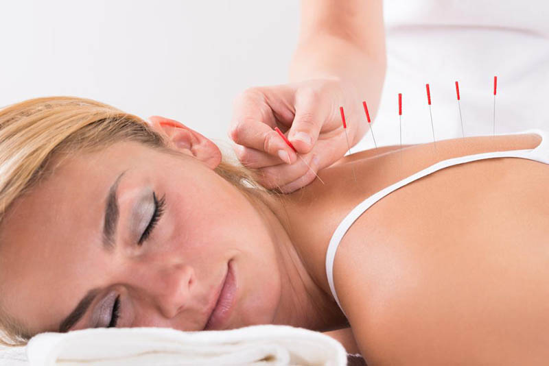 Can Acupuncture Help With Chemo Side Effects?