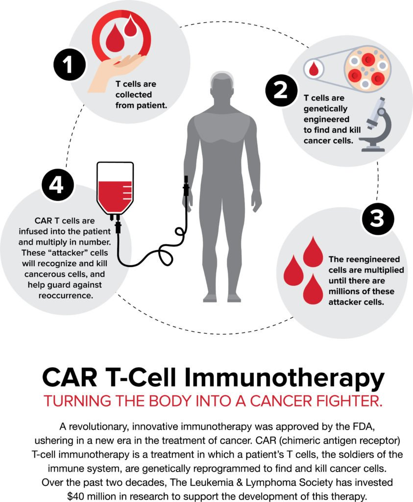 CAR-T immunotherapy infographic
