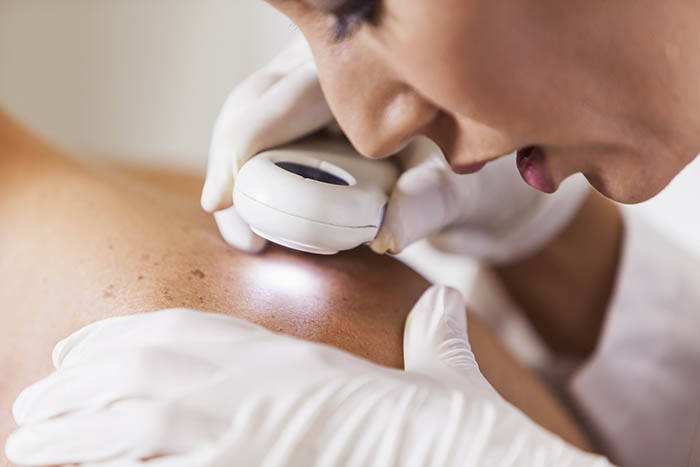 Are You at Risk for Skin Cancer? Take this Quick Quiz!